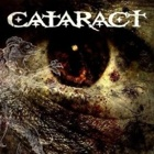 Cataract- Cataract